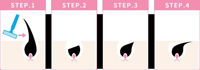 その2:毛の生える方向が、ズレて、皮膚内部の方向に成長する